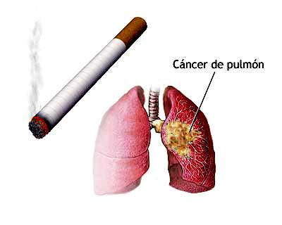 Los seminarios a dejar fumar